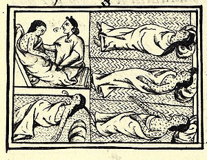 300px-FlorentineCodex_BK12_F54_smallpox